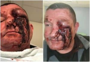 Man admits attack that left Norwich doorman with horror injuries