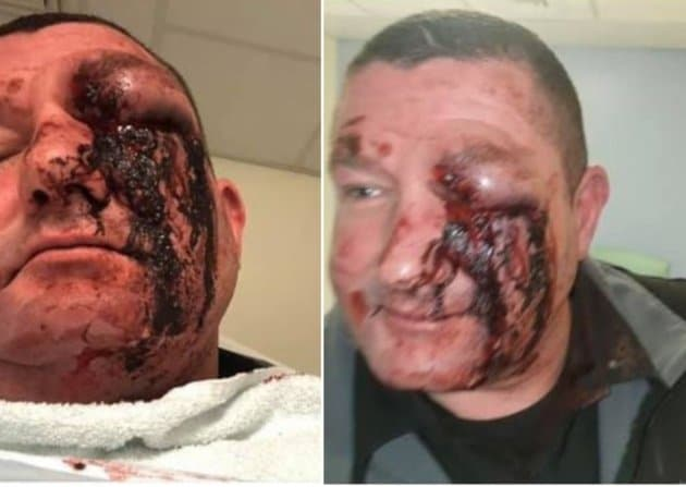 Doorman forced to quit after 'colossal punch' fractured eye socket