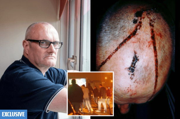 Glasgow doorman left with horror head wounds after Ajax hooligans attack hopes they'll be jailed after SIX YEARS